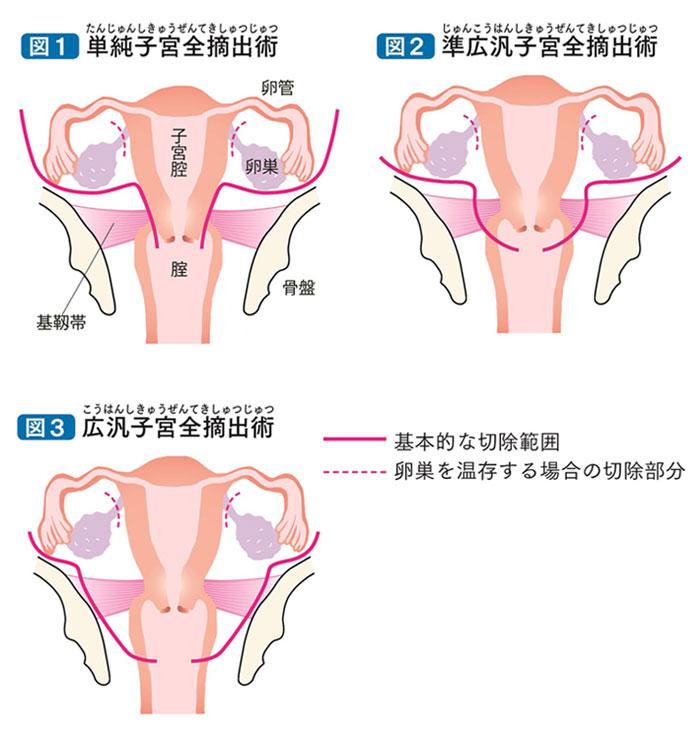 子宮頸がんの説明図です。